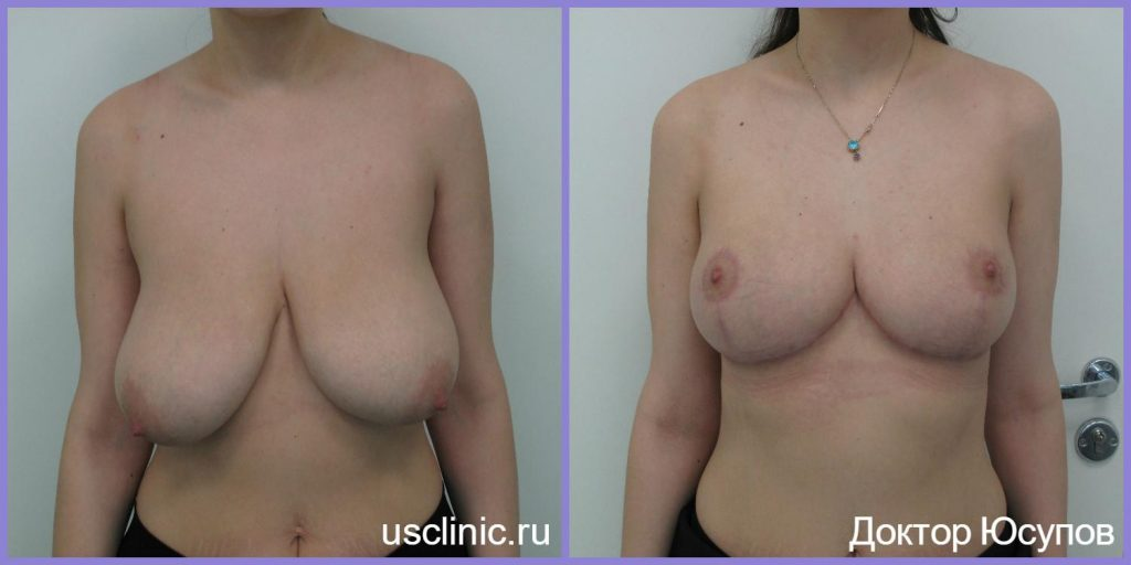 breast-reduction-patient-1-1